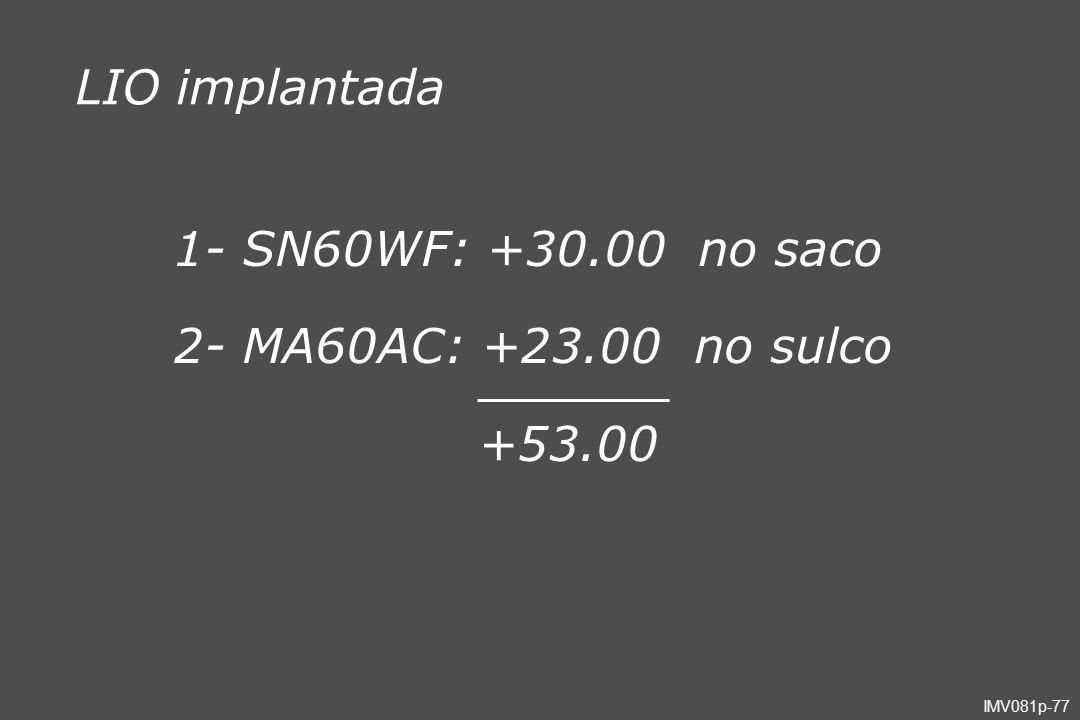 LIO implantada 1- SN60WF: +30.00 no saco 2- MA60AC: +23.00 no sulco +53.00
