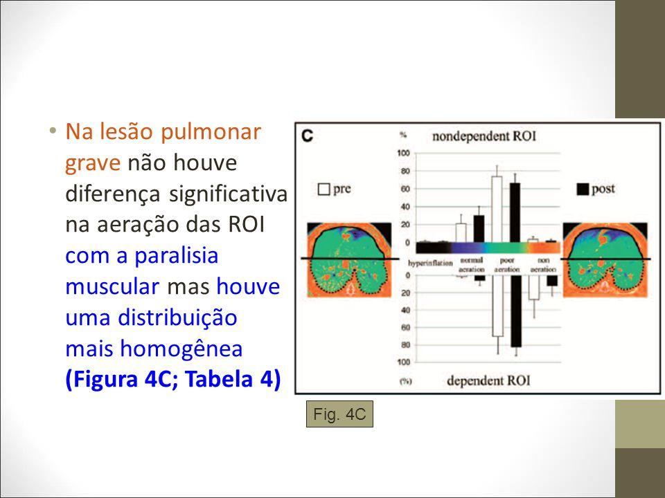 Na lesão pulmonar grave não houve diferença significativa na aeração das ROI com a paralisia muscular mas houve uma distribuição mais homogênea (Figura 4C; Tabela 4)