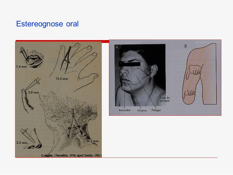 Estereognose oral