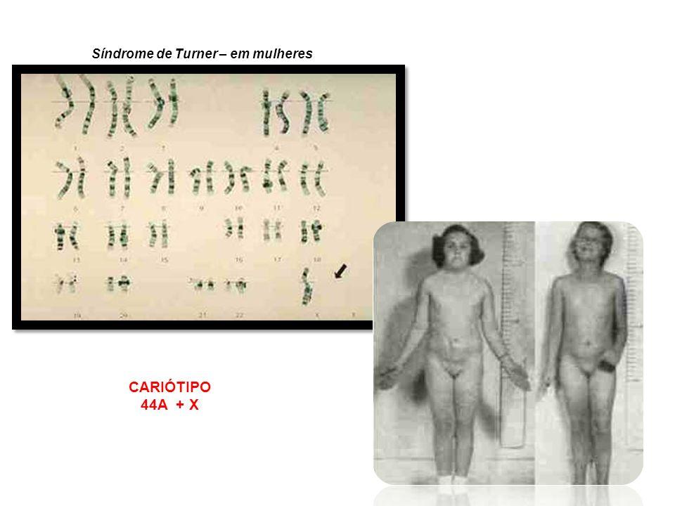 Síndrome de Turner – em mulheres
