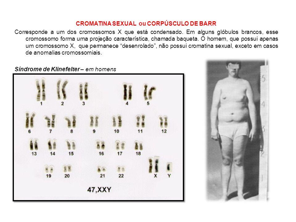 CROMATINA SEXUAL ou CORPÚSCULO DE BARR Corresponde a um dos cromossomos X que está condensado.