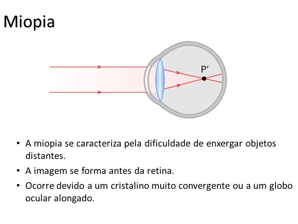 Miopia A miopia se caracteriza pela dificuldade de enxergar objetos distantes. A imagem se forma antes da retina.