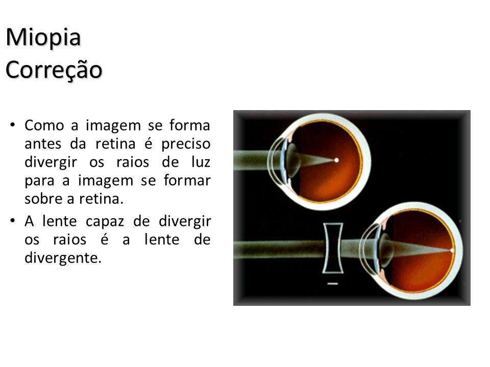 Miopia Correção Como a imagem se forma antes da retina é preciso divergir os raios de luz para a imagem se formar sobre a retina.