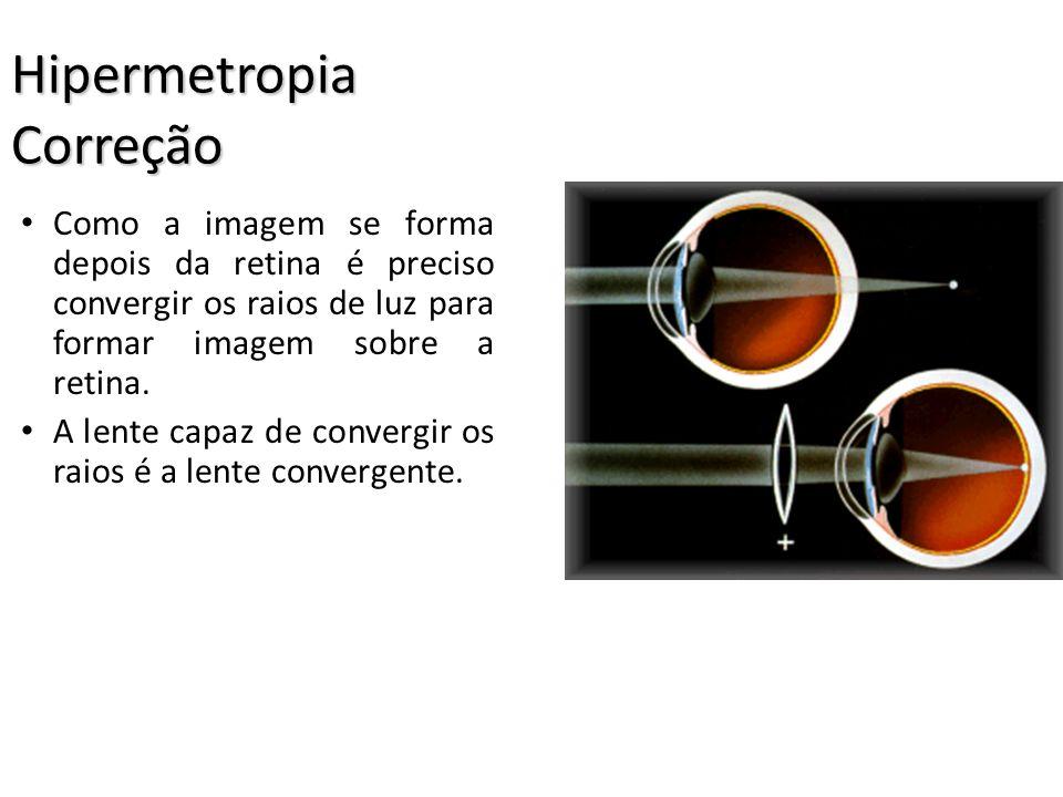 Hipermetropia Correção