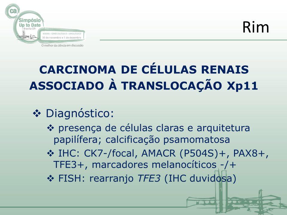 CARCINOMA DE CÉLULAS RENAIS ASSOCIADO À TRANSLOCAÇÃO Xp11