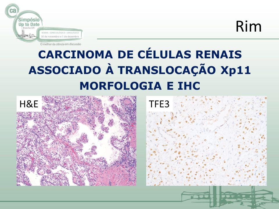 Rim CARCINOMA DE CÉLULAS RENAIS ASSOCIADO À TRANSLOCAÇÃO Xp11 MORFOLOGIA E IHC H&E TFE3