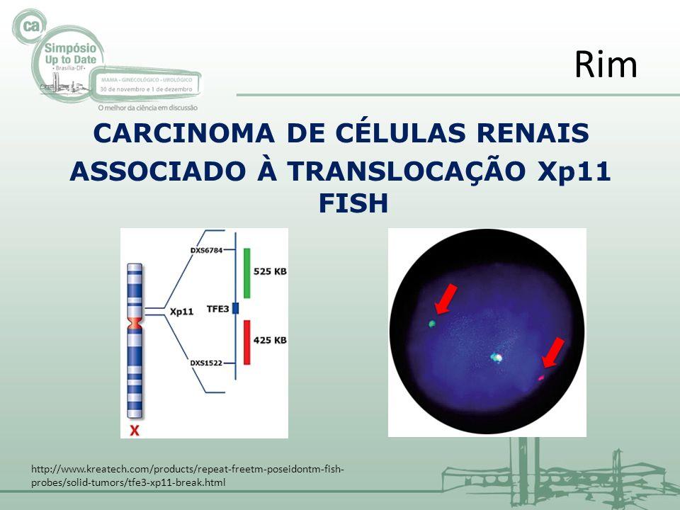 CARCINOMA DE CÉLULAS RENAIS ASSOCIADO À TRANSLOCAÇÃO Xp11 FISH