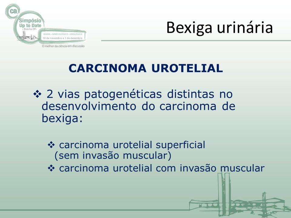 Bexiga urinária CARCINOMA UROTELIAL