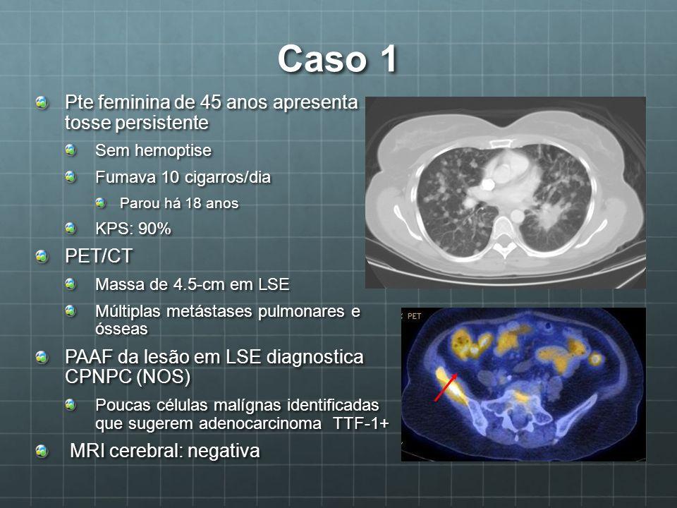 Caso 1 Pte feminina de 45 anos apresenta tosse persistente PET/CT