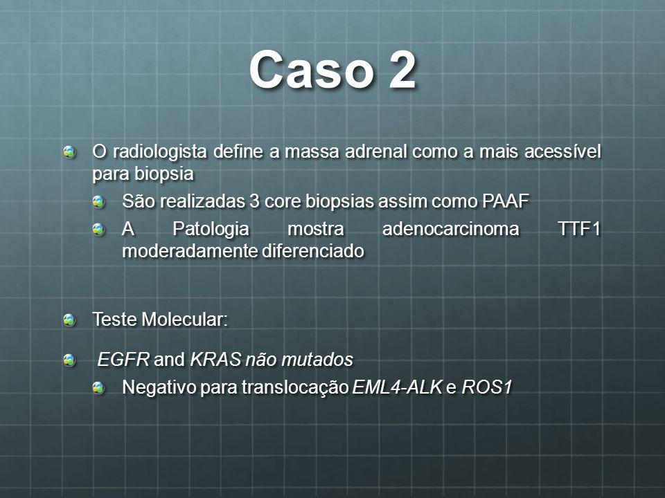 Caso 2 O radiologista define a massa adrenal como a mais acessível para biopsia. São realizadas 3 core biopsias assim como PAAF.