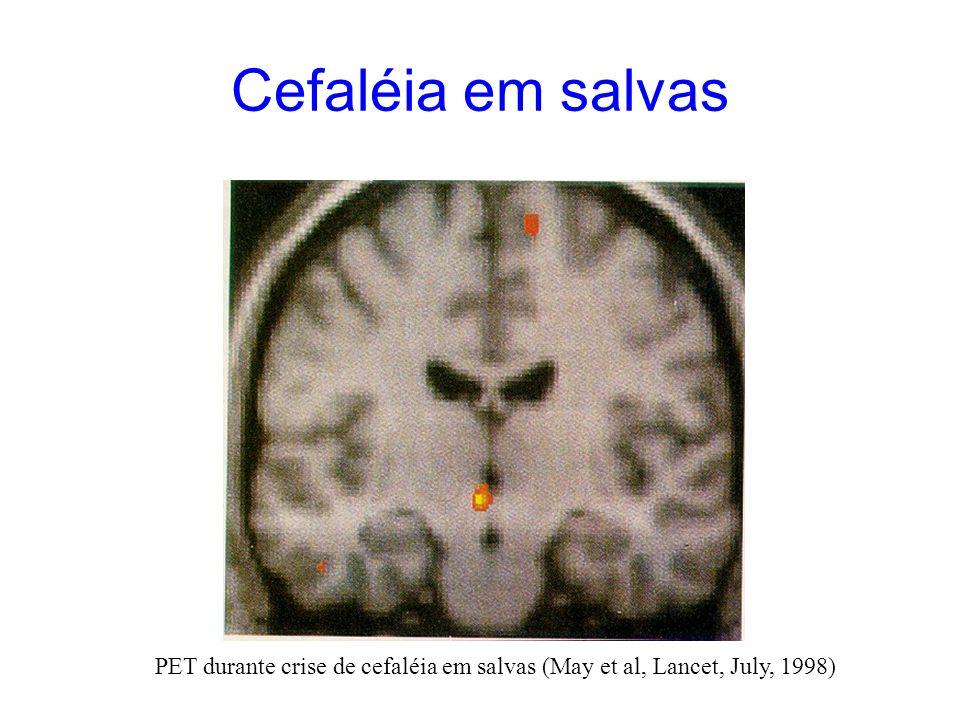 Cefaléia em salvas PET durante crise de cefaléia em salvas (May et al, Lancet, July, 1998)