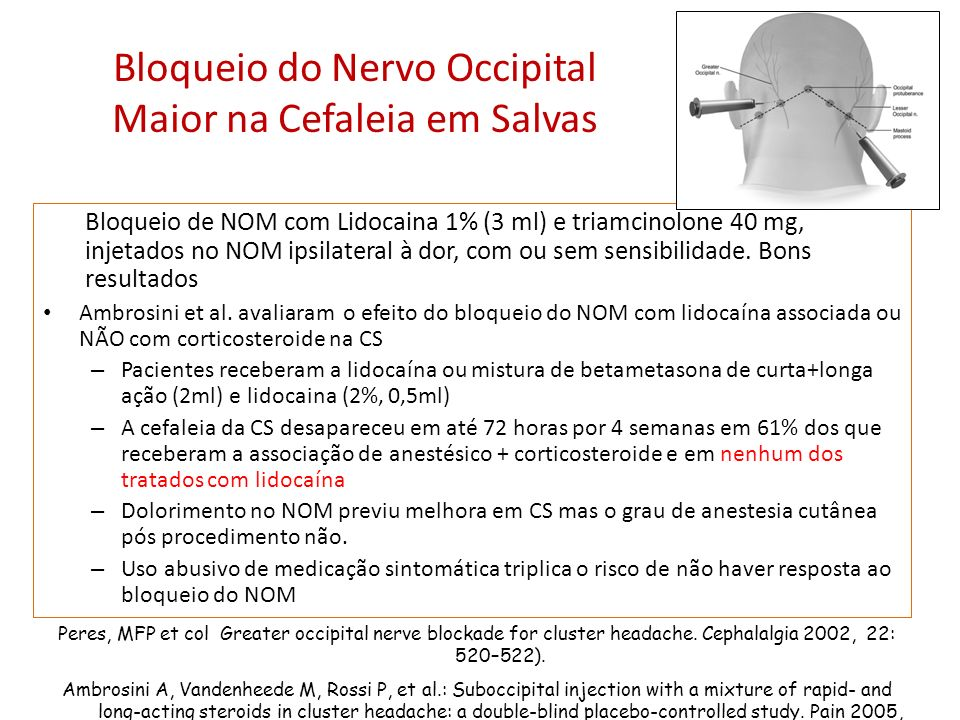 Bloqueio do Nervo Occipital Maior na Cefaleia em Salvas