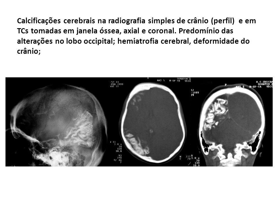 Calcificações cerebrais na radiografia simples de crânio (perfil) e em TCs tomadas em janela óssea, axial e coronal.