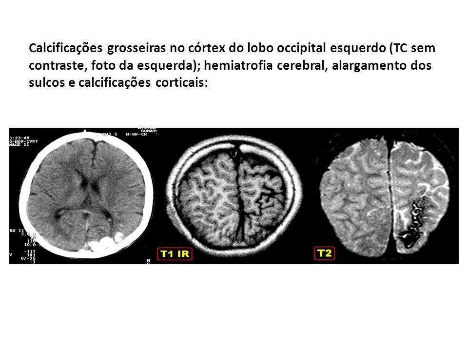 Calcificações grosseiras no córtex do lobo occipital esquerdo (TC sem contraste, foto da esquerda); hemiatrofia cerebral, alargamento dos sulcos e calcificações corticais: