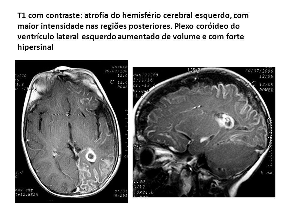 T1 com contraste: atrofia do hemisfério cerebral esquerdo, com maior intensidade nas regiões posteriores.