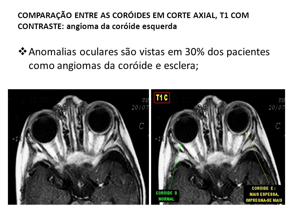 COMPARAÇÃO ENTRE AS CORÓIDES EM CORTE AXIAL, T1 COM CONTRASTE: angioma da coróide esquerda
