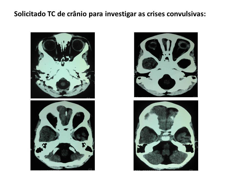 Solicitado TC de crânio para investigar as crises convulsivas: