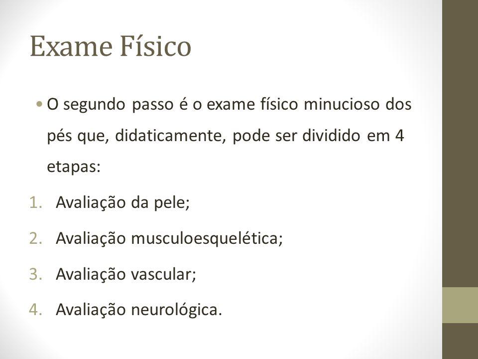 Exame FísicoO segundo passo é o exame físico minucioso dos pés que, didaticamente, pode ser dividido em 4 etapas:
