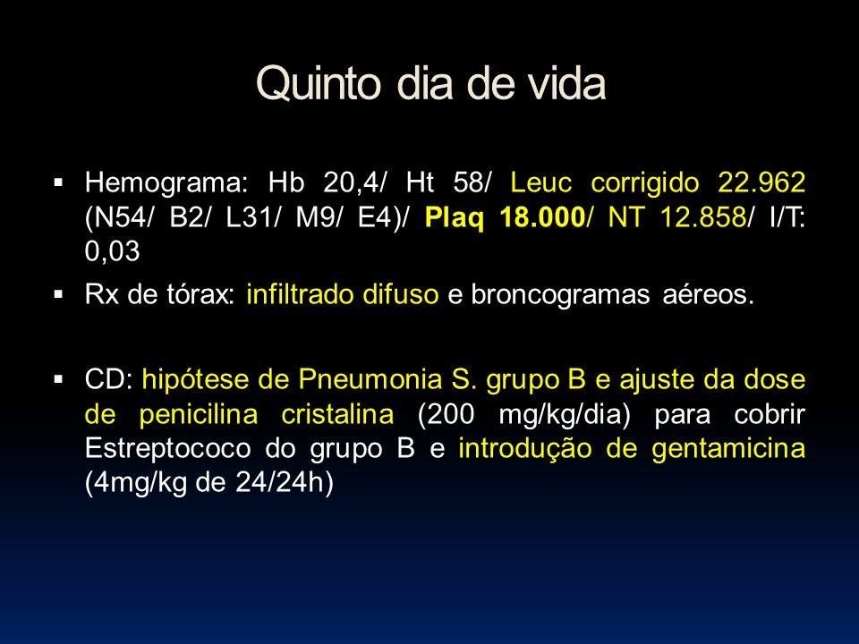 Quinto dia de vida Hemograma: Hb 20,4/ Ht 58/ Leuc corrigido 22.962 (N54/ B2/ L31/ M9/ E4)/ Plaq 18.000/ NT 12.858/ I/T: 0,03.