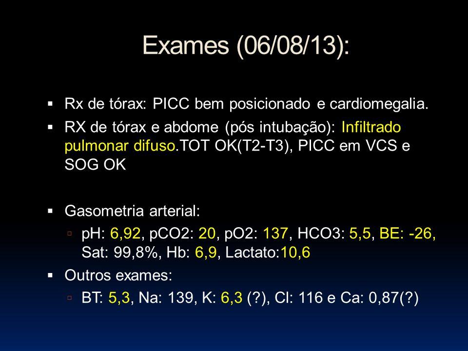 Exames (06/08/13): Rx de tórax: PICC bem posicionado e cardiomegalia.