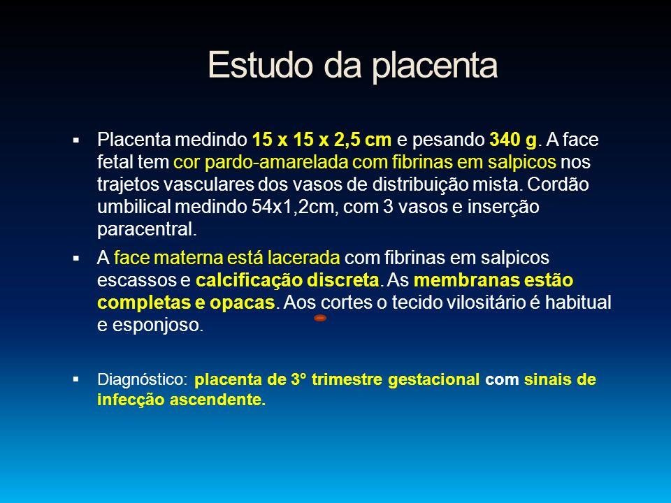 Estudo da placenta
