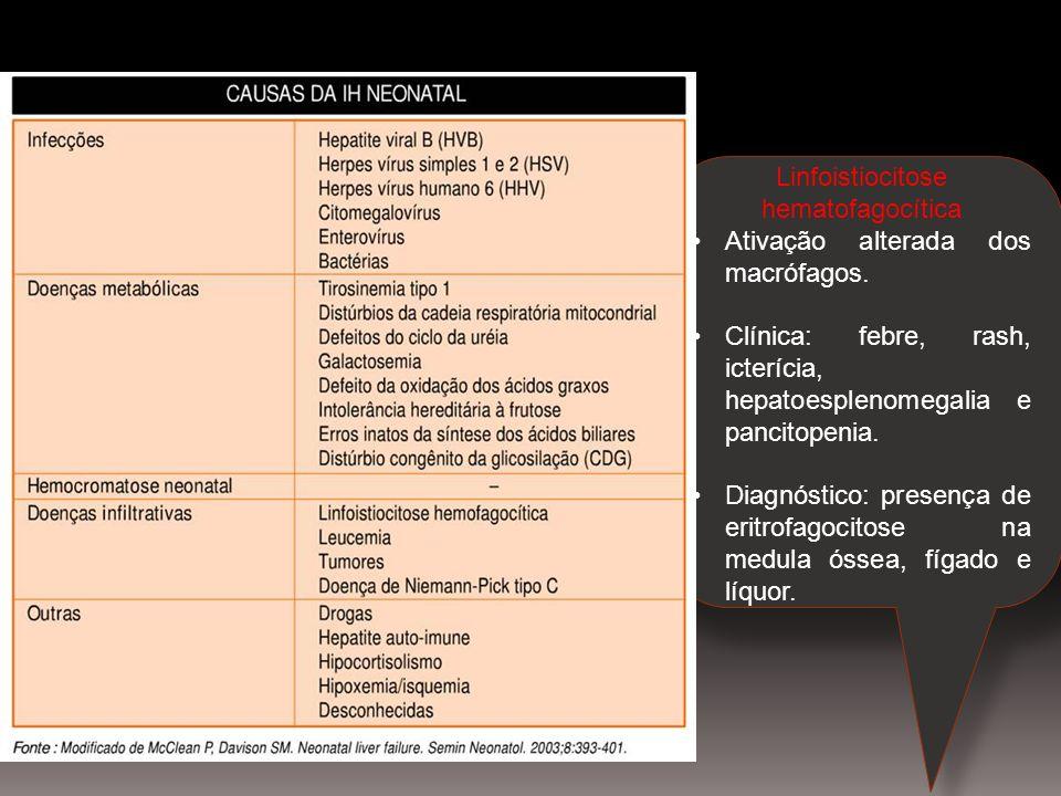 Linfoistiocitose hematofagocítica