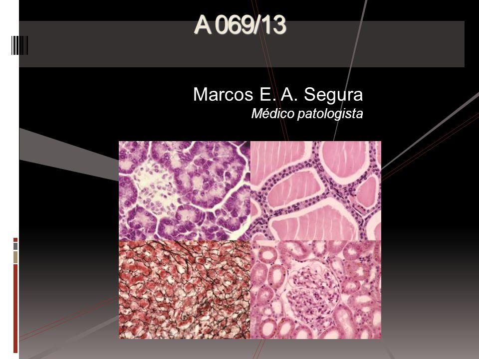 Marcos E. A. Segura Médico patologista