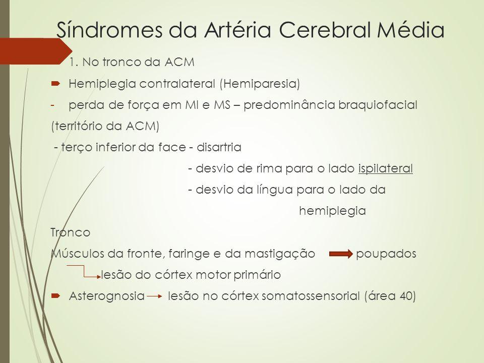 Síndromes da Artéria Cerebral Média