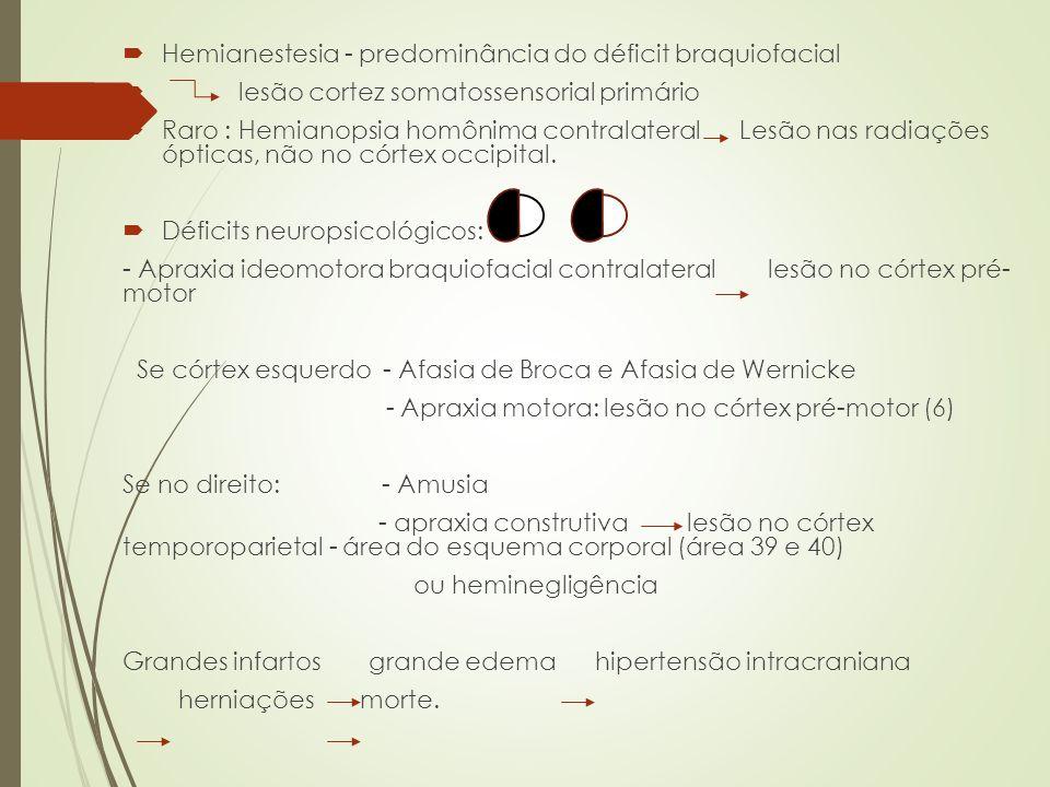 Hemianestesia - predominância do déficit braquiofacial