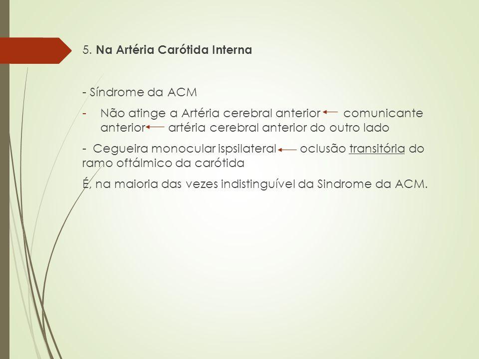 5. Na Artéria Carótida Interna