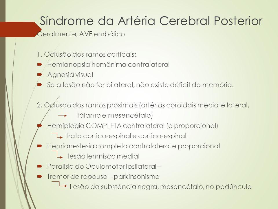 Síndrome da Artéria Cerebral Posterior