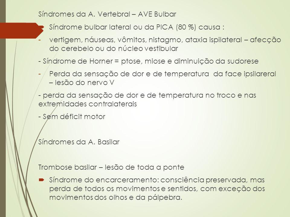 Síndromes da A. Vertebral – AVE Bulbar