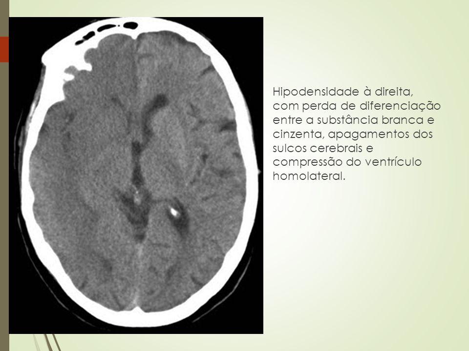 Hipodensidade à direita, com perda de diferenciação entre a substância branca e cinzenta, apagamentos dos sulcos cerebrais e compressão do ventrículo homolateral.