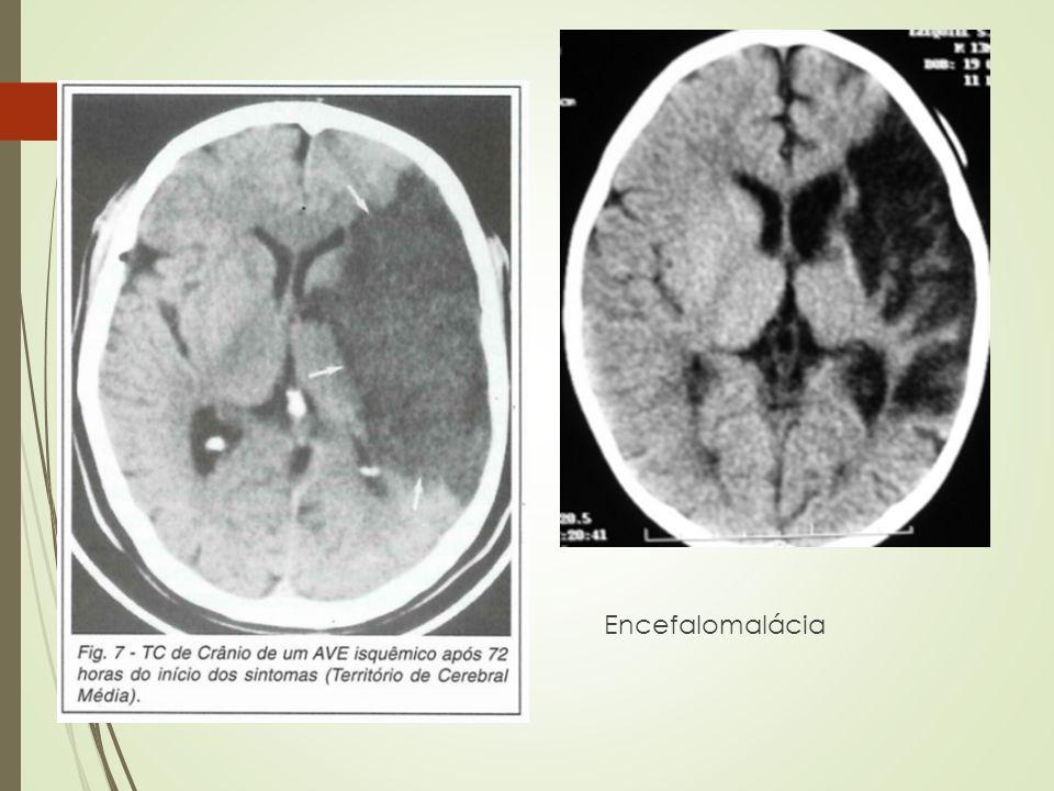 Encefalomalácia