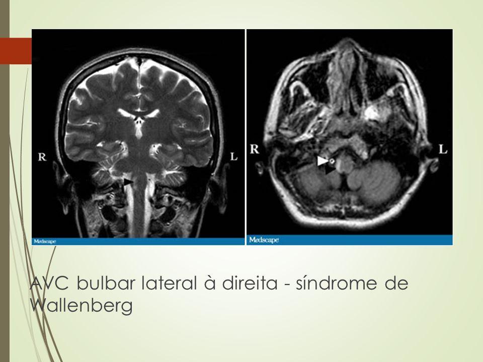 AVC bulbar lateral à direita - síndrome de Wallenberg