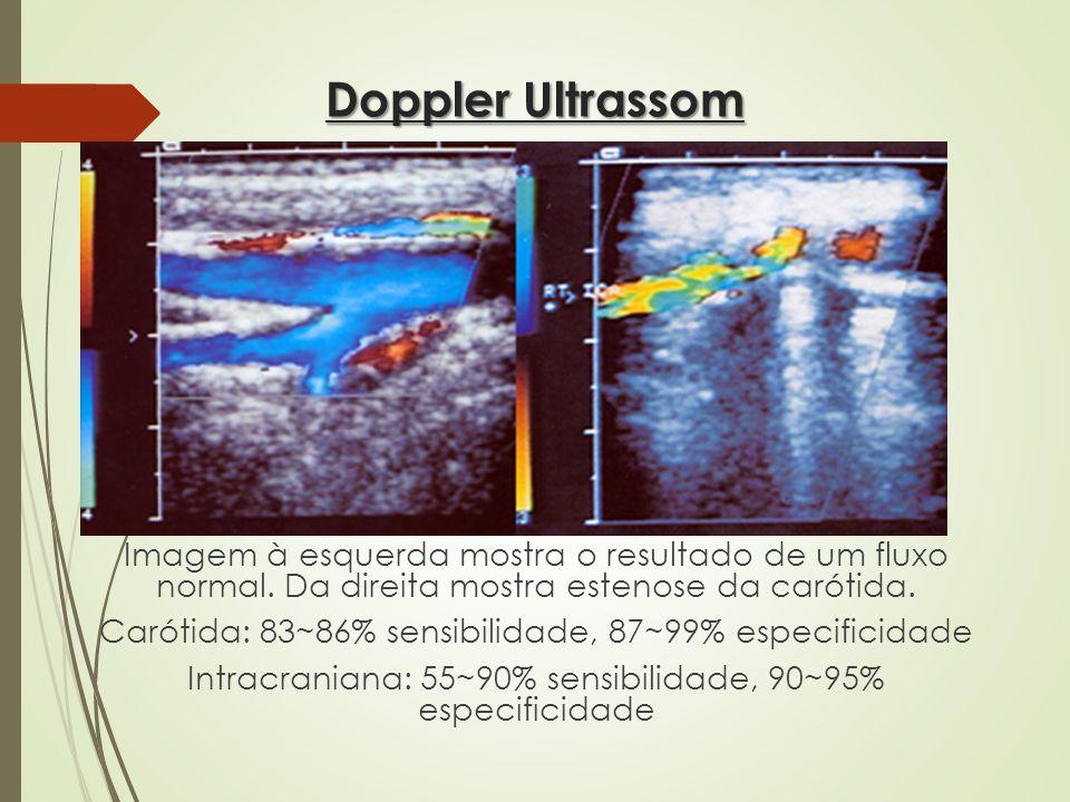 Doppler Ultrassom