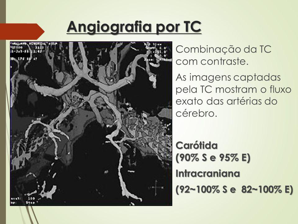 Angiografia por TC Combinação da TC com contraste.