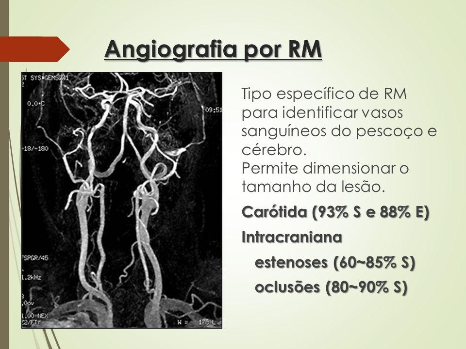 Angiografia por RM