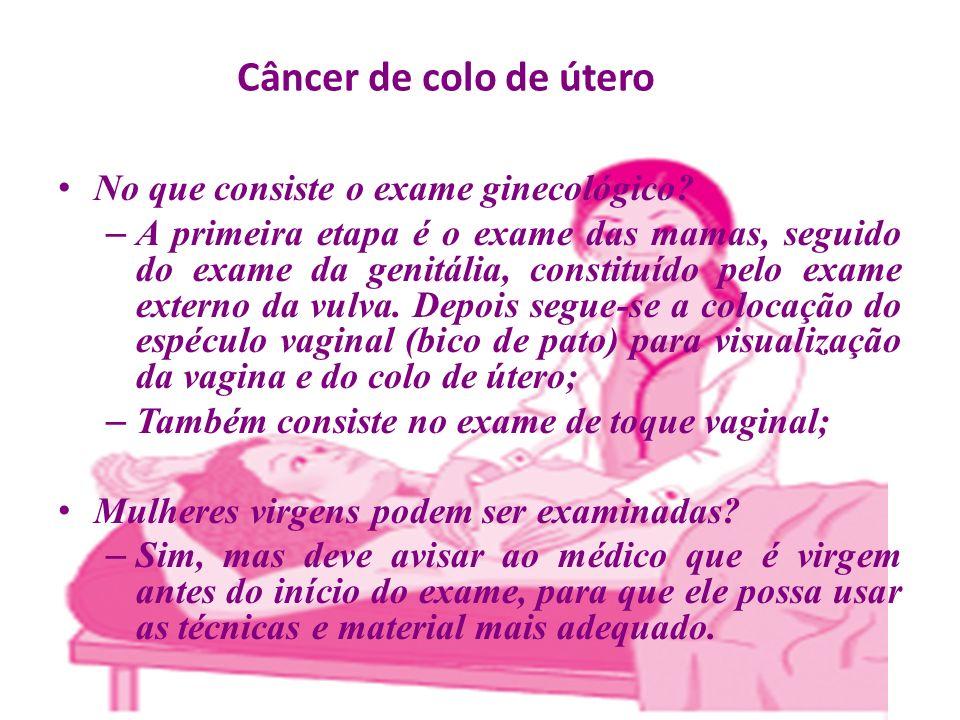Câncer de colo de útero No que consiste o exame ginecológico