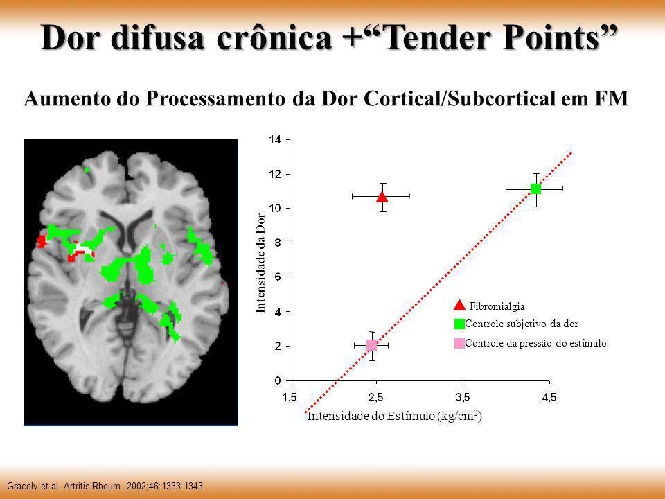 Dor difusa crônica + Tender Points