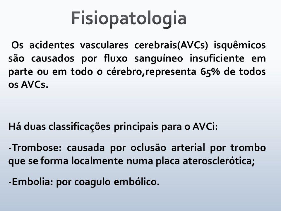 Fisiopatologia Há duas classificações principais para o AVCi: