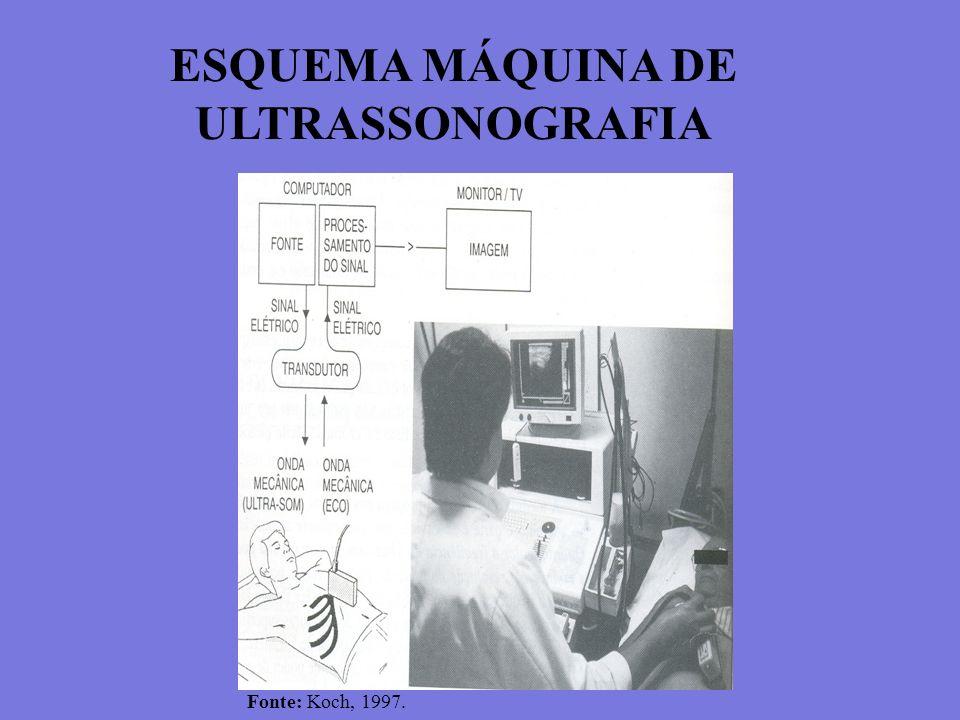 ESQUEMA MÁQUINA DE ULTRASSONOGRAFIA