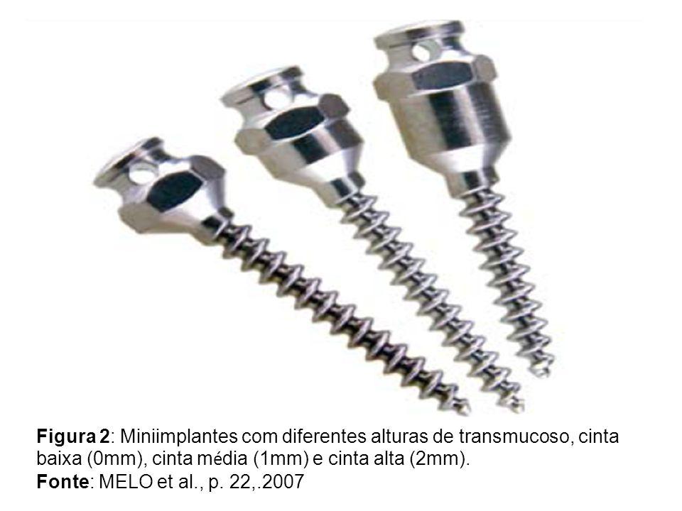 Figura 2: Miniimplantes com diferentes alturas de transmucoso, cinta baixa (0mm), cinta média (1mm) e cinta alta (2mm).