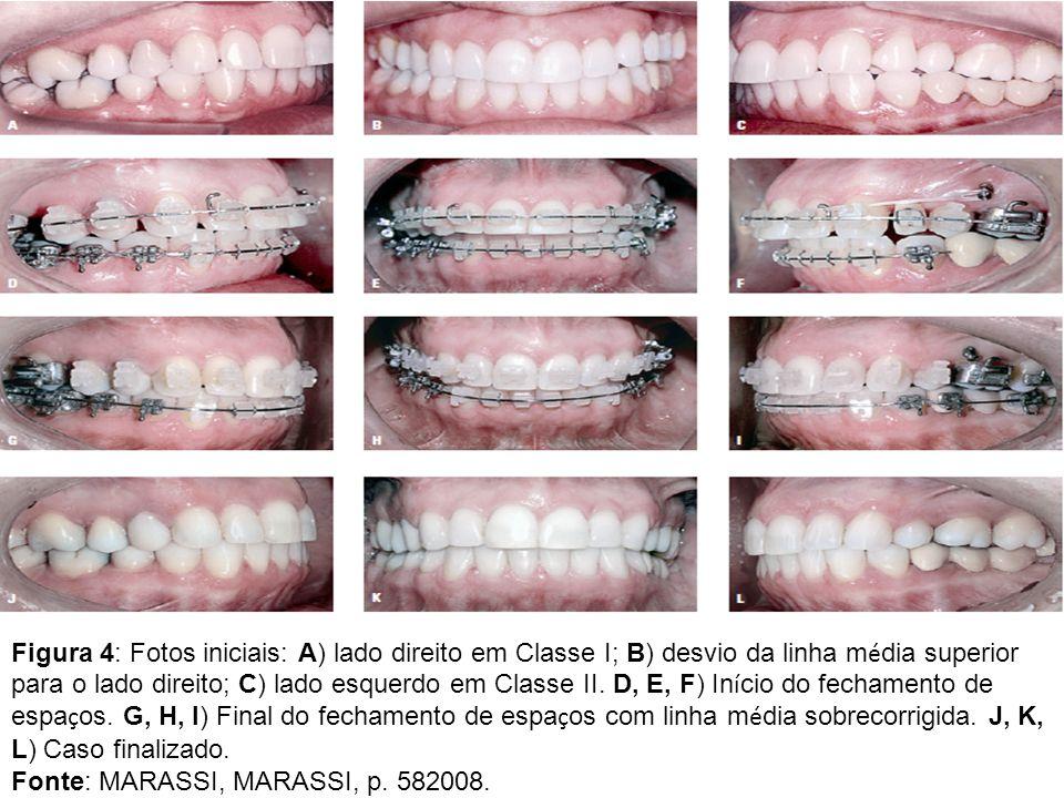 Figura 4: Fotos iniciais: A) lado direito em Classe I; B) desvio da linha média superior para o lado direito; C) lado esquerdo em Classe II. D, E, F) Início do fechamento de espaços. G, H, I) Final do fechamento de espaços com linha média sobrecorrigida. J, K, L) Caso finalizado.