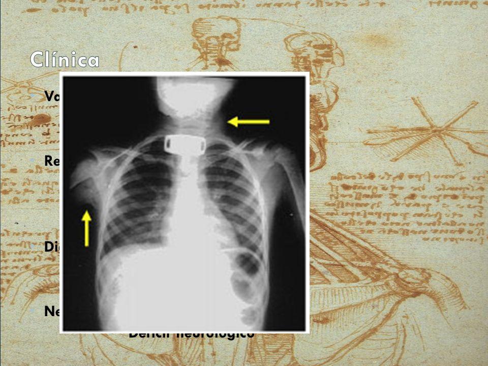Clínica Vascular: Choque Hematoma em expansão Pulso reduzido