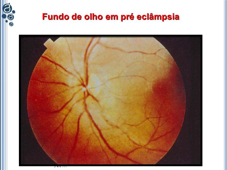 Fundo de olho em pré eclâmpsia