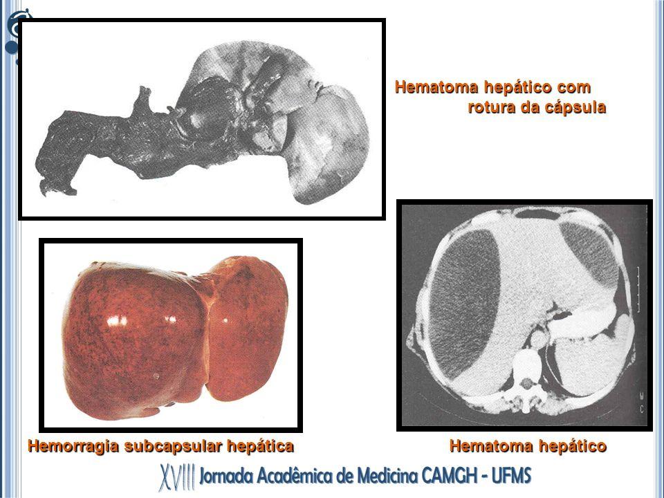 Hematoma hepático com rotura da cápsula Hemorragia subcapsular hepática Hematoma hepático
