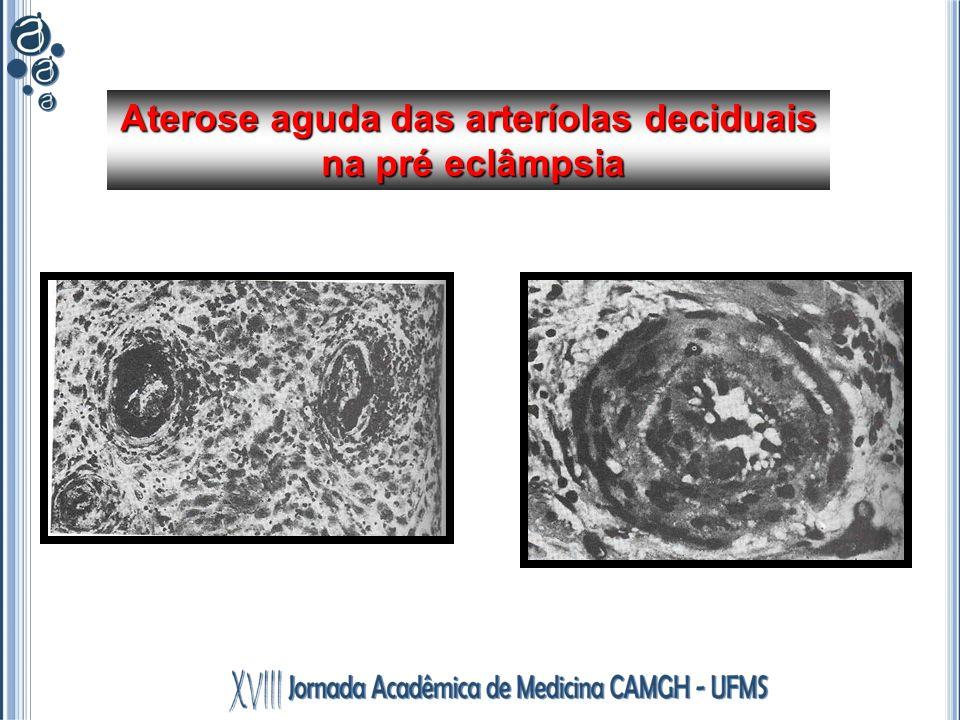 Aterose aguda das arteríolas deciduais
