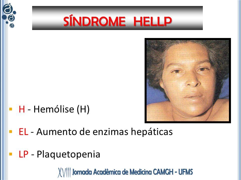 SÍNDROME HELLP H - Hemólise (H) EL - Aumento de enzimas hepáticas