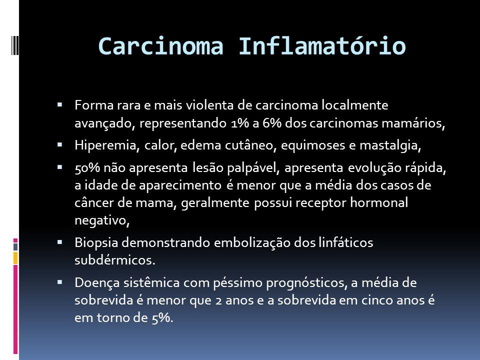 Carcinoma Inflamatório